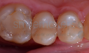 Tooth - Coloured Fillings